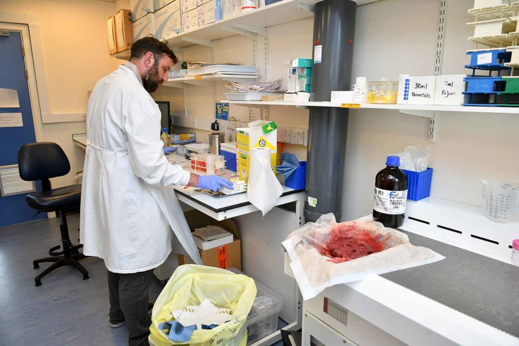 A researcher prepares a human placenta for a study at the University of Bristol in the United Kingdom.